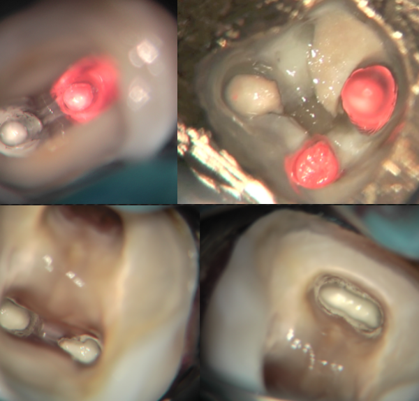 MTA placement in curved molars part 1: THE TECHNIQUE