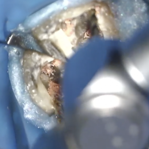 The removal of filling material during retreatments