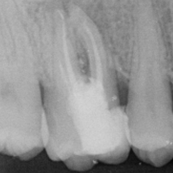 Management of a retreatment case with  multiple endodontic mishaps