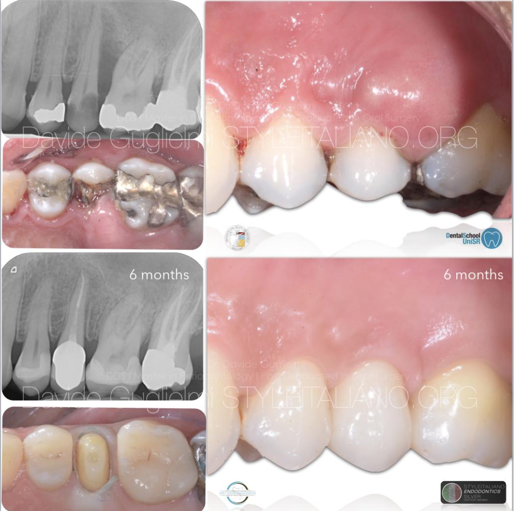 Interactions Between  Endodontics and Periodontics:  Part I